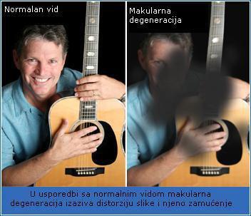 makularna-degeneracija_big