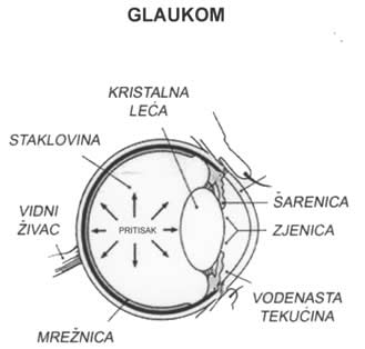What Is Glaucoma Optometry Today