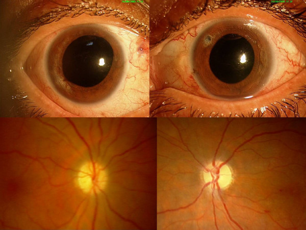 FRONT ISCHEMIC OPTIC NEUROPATHY