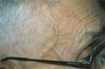 Irregularly thickened temporal artery