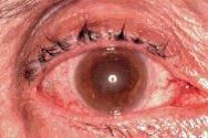 The appearance of the eye in acute glaucoma