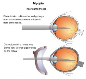 myopia_shortsightedness_eye