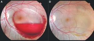 pregnancy-eye-140219