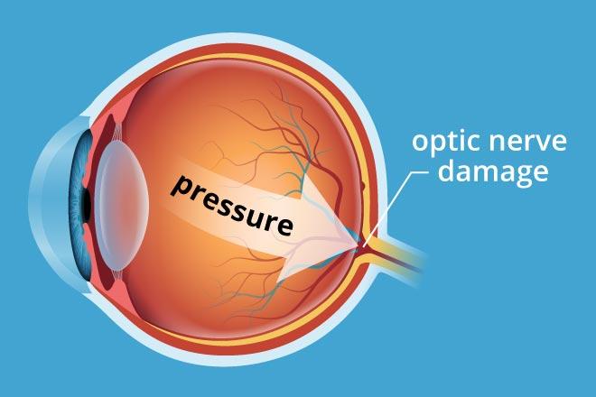 glaucoma pressure
